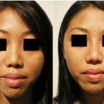 Injection Rhinoplasty Gaining Popularity in Asian Community